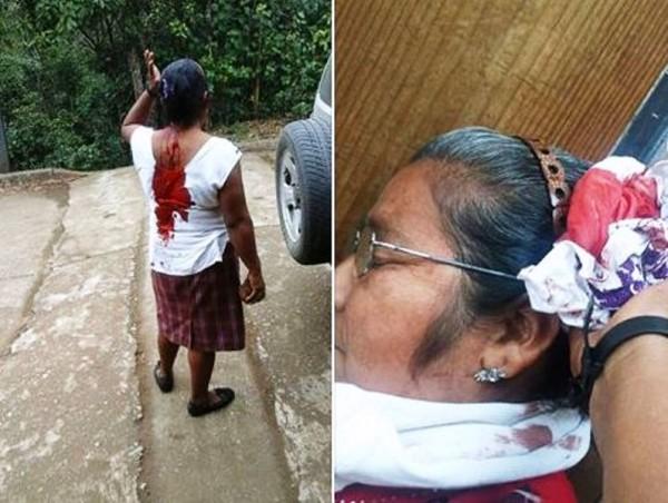 Hieren a mujer en Jalapa de Díaz