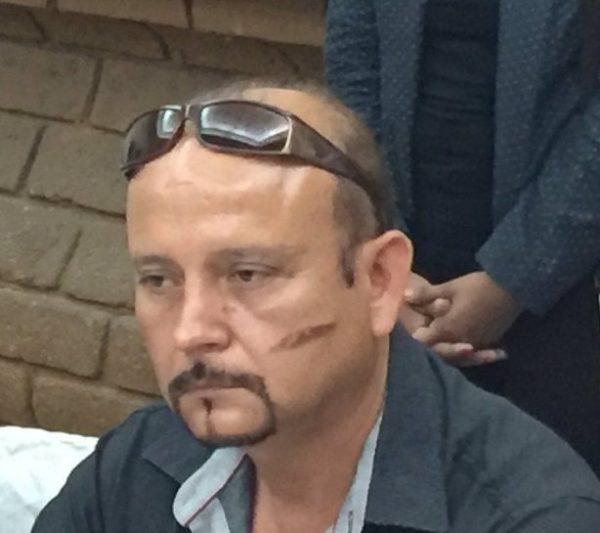 Candidato de MC que sufrió atentado en Tlacolula, asegura que nada lo detendrá