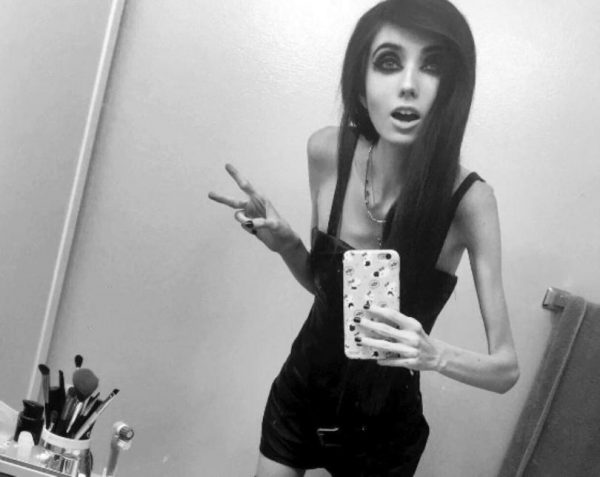 Pesa 27 kilos, es youtuber y la acusan de inducir a la anorexia
