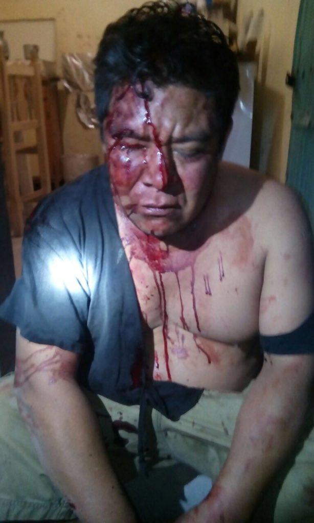 #FOTOS Hay lesionados por enfrentamiento entre mototaxistas