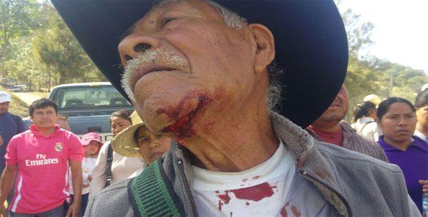 Gresca en comunidad de Tlaxiaco deja una veintena de heridos