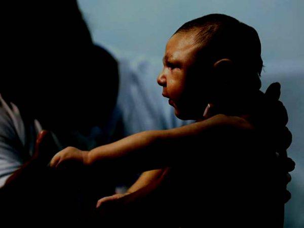 Caso de microcefalia por zika no fue atendido en Oaxaca: GVR
