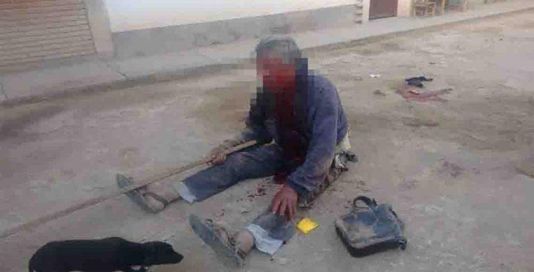 Prenden fuego a tres individuos en Oaxaca; los rescata la policía