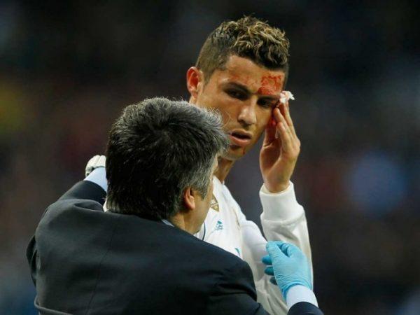 ¡En la cara no! Descalabran a CR7 en goleada del Madrid