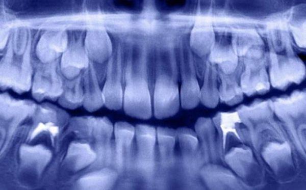 Niño acude al dentista por dolor de mandíbula y le extraen 500 dientes