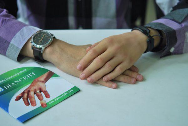 Se amplía plazo para recibir prótesis de mano