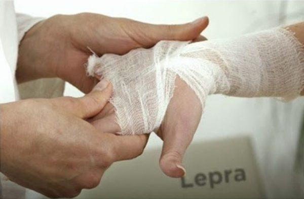 Jurisdicción Sanitaria del Istmo reporta 5 casos de lepra en la región
