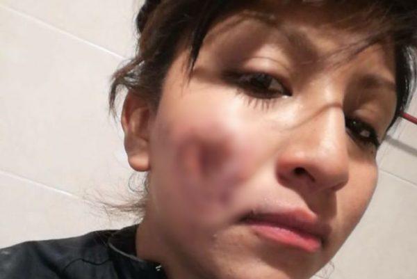 """""""Espero que por su dichosa lucha, la cara no me quede marcada"""", dice policía herida por feministas"""