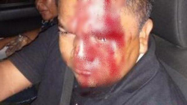Policías de Astata, golpean a enfermero por miedo de contagio