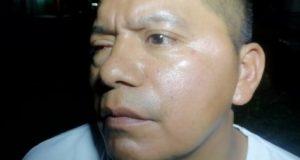 Delegado de transito ebrio, golpea a un elemento en Valle nacional