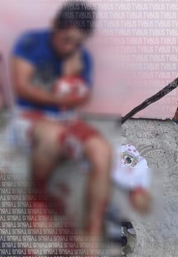Le cortan la mano de un machetazo a presunto ladrón en Coatzacoalcos Veracruz
