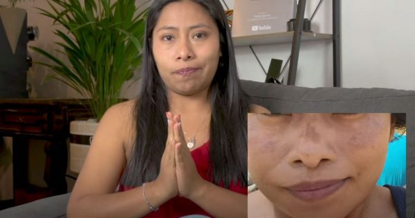 Yalitza Aparicio revela que padece enfermedad en la piel